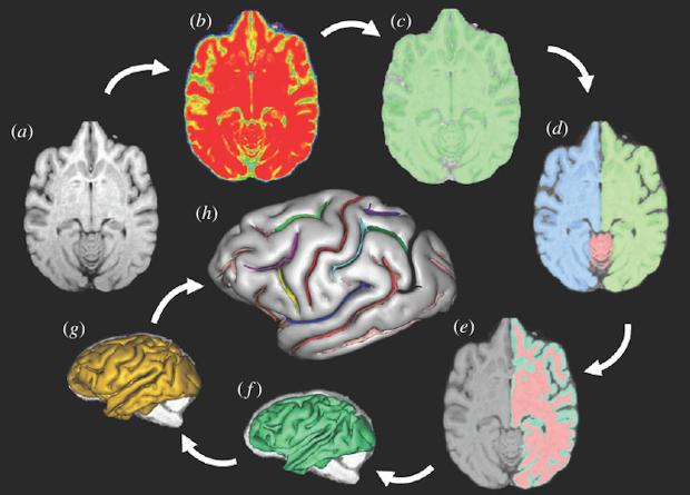 мозг шимпанзе