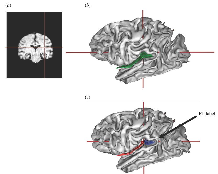 Planum temporale у шимпанзе в разных проекциях