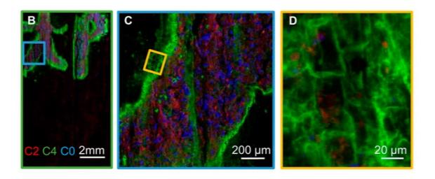 Элементный микроанализ методом ренгеновской флуоресценции указал на распределение олова и фофора по периметру чернильного пятна и в стенках клеток папируса